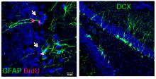 Ученые ТГУ с помощью генной инженерии проследят пути миграции нейронов